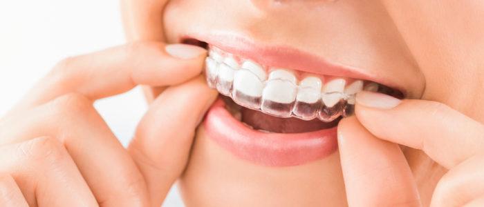Invisalign Northside Dental Clinic
