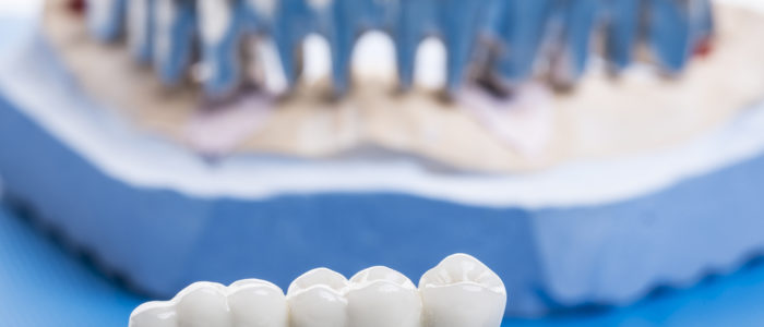 Close-up of ceramic crowns for teeth