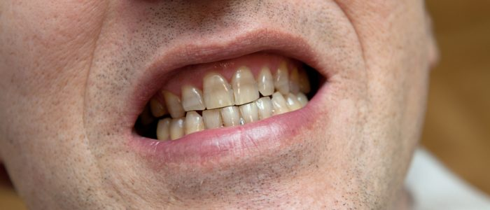 Smiling man with gray teeth